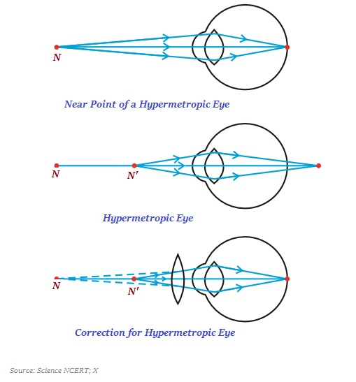 Physics the human eye and the colorful world hypermetropia ccuart Choice Image